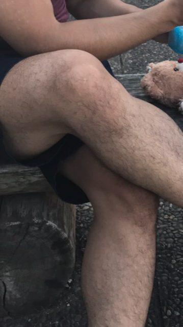 手と足の毛