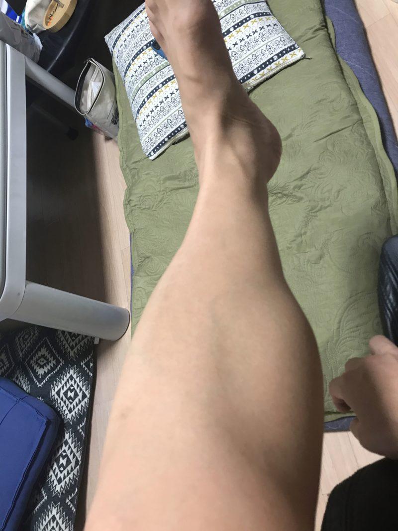 kenon-leg